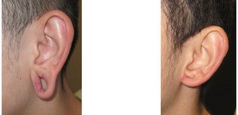 Gauge earlobe hole repair before - Gauge earlobe hole repair 10 days after surgery before 969043
