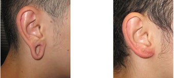 Gauge earlobe hole repair before - Gauge earlobe hole repair 10 days after surgery after 969043