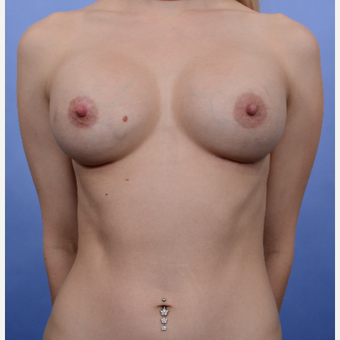 Breast Augmentation (500gm) after 3052165