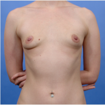 Breast Augmentation (500gm) before 3052165