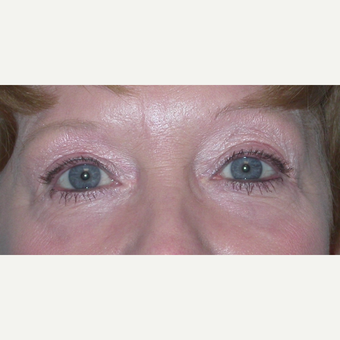 45-54 year old woman treated with Eyelid Surgery after 3074602