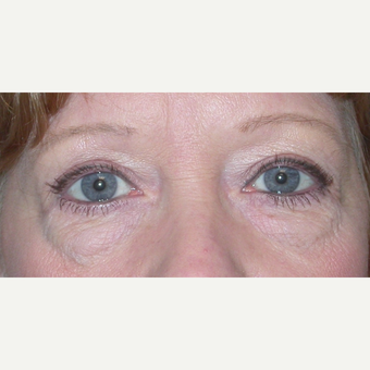 45-54 year old woman treated with Eyelid Surgery before 3074602