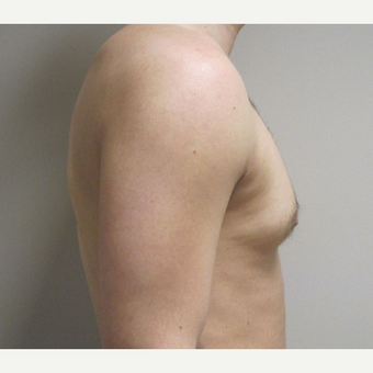 Male Breast Reduction before 3815371
