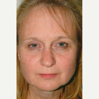 45-54 year old woman treated with Rhinoplasty before 3406260
