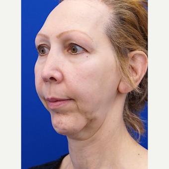 45-54 year old woman treated with Facelift before 3653448