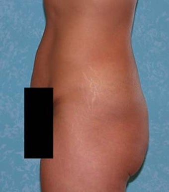 Buttock Augmentation with Circumferential Body Lift before 857138