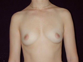 Breast augmentation before 293944