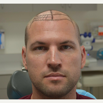 35-44 year old man treated with FUE Hair Transplant before 3065707