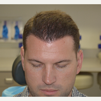 35-44 year old man treated with FUE Hair Transplant after 3065707
