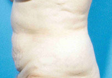 Abdominoplasty 279332