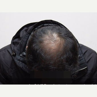 35-44 year old man treated with Scalp Micropigmentation before 2006899