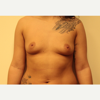 Breast Augmentation before 3418072
