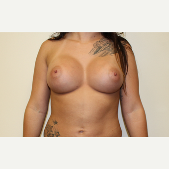 Breast Augmentation after 3418072