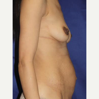 38 Year Old - Breast Aug and Tummy Tuck before 3583565