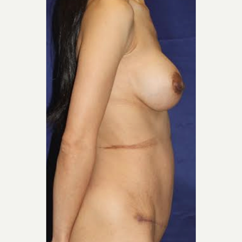 38 Year Old - Breast Aug and Tummy Tuck after 3583565