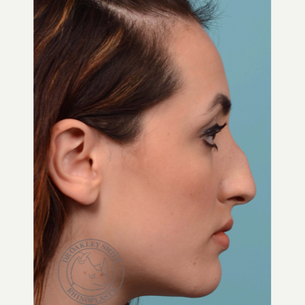 18-24 year old woman treated with Rhinoplasty before 3092555