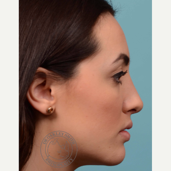 18-24 year old woman treated with Rhinoplasty after 3092555