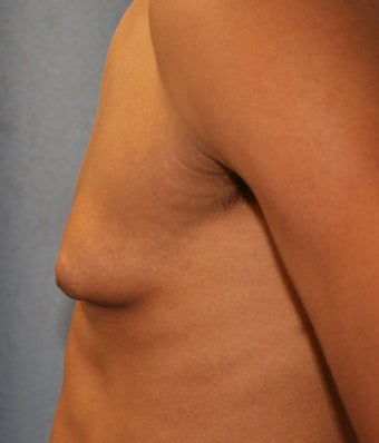 Male Breast Reduction-Gynecomastia before 923080