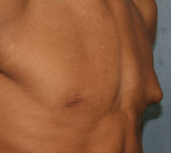 Male Breast Reduction-Gynecomastia 923080