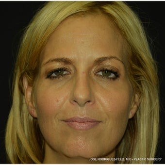 Botox after 2391451