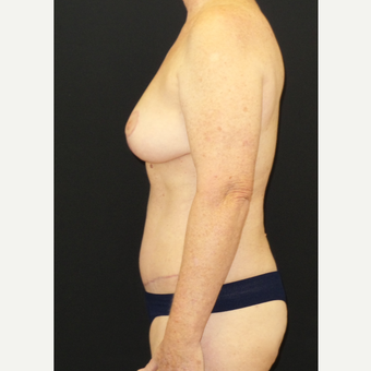 45-54 year old woman treated with Mommy Makeover after 3306131