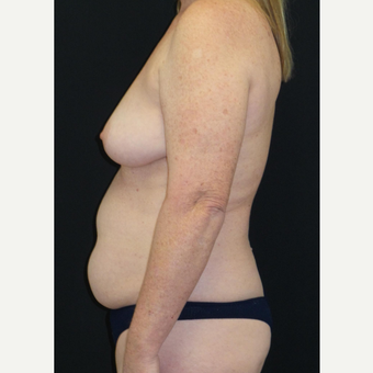 45-54 year old woman treated with Mommy Makeover before 3306131