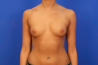 18-24 year old woman treated with Breast Implants before 3499546