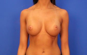 18-24 year old woman treated with Breast Implants after 3499546