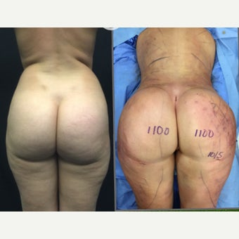 25-34 year old woman has Brazilian Butt Lift Revision before 2256236