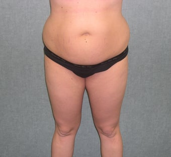 SmartLipo before 607521