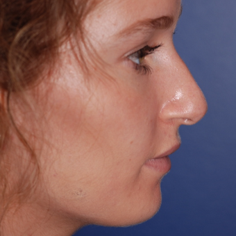 18-24 year old woman treated with Rhinoplasty before 3624367