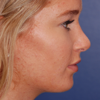 18-24 year old woman treated with Rhinoplasty after 3624367