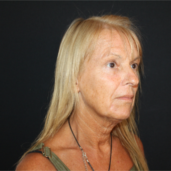 55-64 year old woman treated with Facelift before 3493548