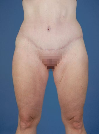 Abdominoplasty after 234480