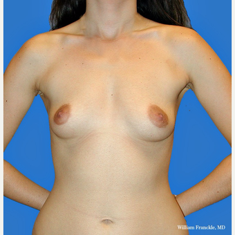 Breast Augmentation with smooth round high profile saline implants before 3420513