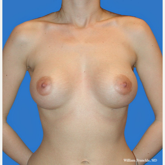 Breast Augmentation with smooth round high profile saline implants after 3420513