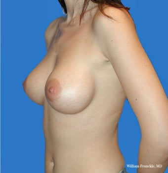 Breast Augmentation with smooth round high profile saline implants 3420513