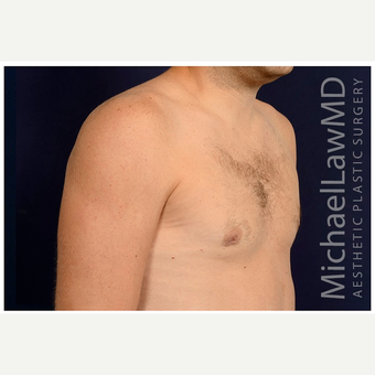 25-34 year old man treated with Male Breast Reduction after 3536863