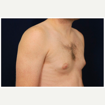 25-34 year old man treated with Male Breast Reduction before 3536863