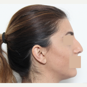 25-34 year old woman treated with Rhinoplasty before 3442473