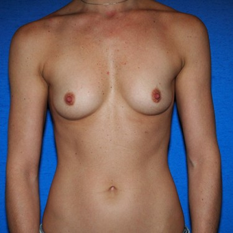 25-34 year old woman treated with Breast Augmentation before 3497263