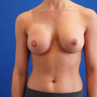 25-34 year old woman treated with Breast Augmentation after 3497263
