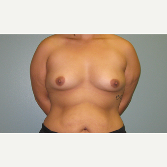 25-34 year old woman treated with Breast Augmentation before 3253913