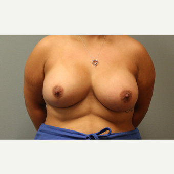 25-34 year old woman treated with Breast Augmentation after 3253913