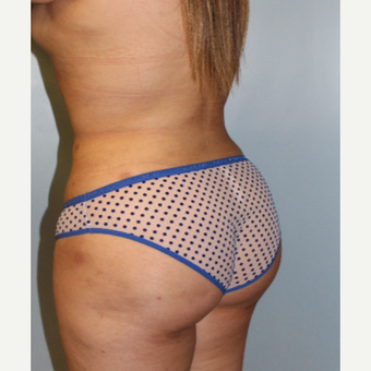 25-34 year old woman treated with Brazilian Butt Lift after 3158537