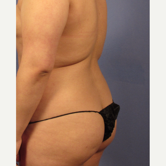 25-34 year old woman treated with Brazilian Butt Lift before 3158537