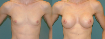 18-24 year old woman treated with Breast Implants