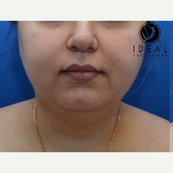 25-34 year old woman treated with Chin Surgery before 3579449