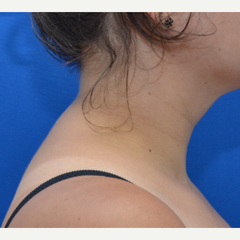 Buffalo Hump Reduction with Liposuction after 3804119