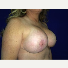 45-54 year old woman treated with Breast Fat Transfer